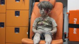 A boy sits in shock after an explosion