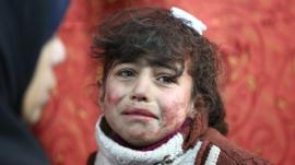 Child in Eastern Ghouta